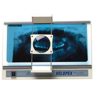 Velopex Hi Lite Röntgenbildbetrachter